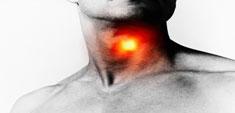 Ganglios inflamados: no hay que alarmarse